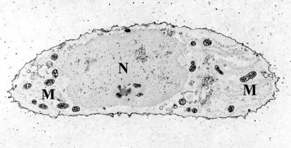 Chondrocyte-_calcium_stain